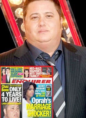Chaz-Bono-weight-stress-transgender-suicide-and-health-risks